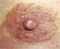 douleurs des mamelons.